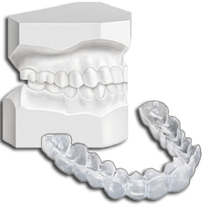 custom-bleaching-trays