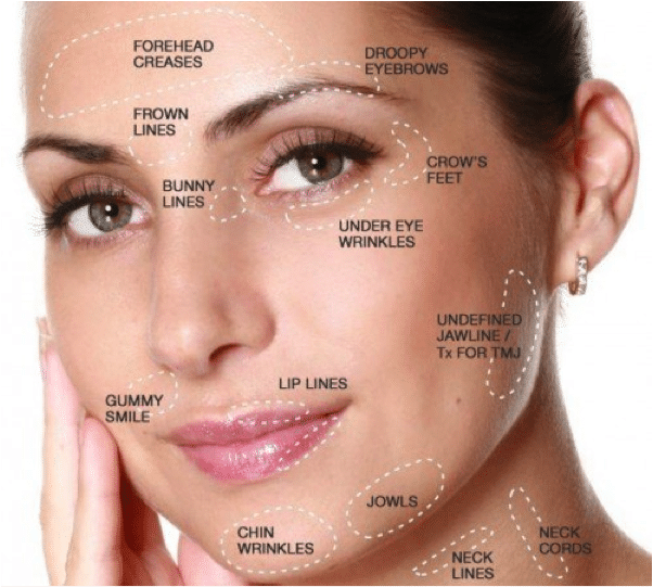 wrinkle relaxers advance dentistry