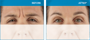 Xeomin before and after
